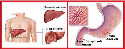 Болезни печени и желудка
