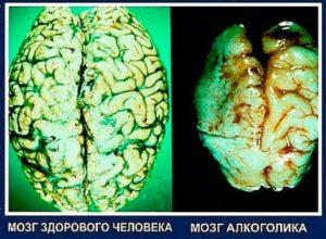 Разрушение мозга человека