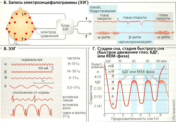 электрэнцефалограмма головного мозга человека