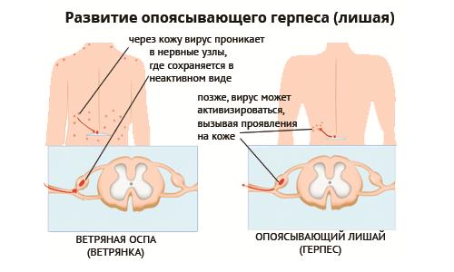 Развитие герпеса 3-го тип