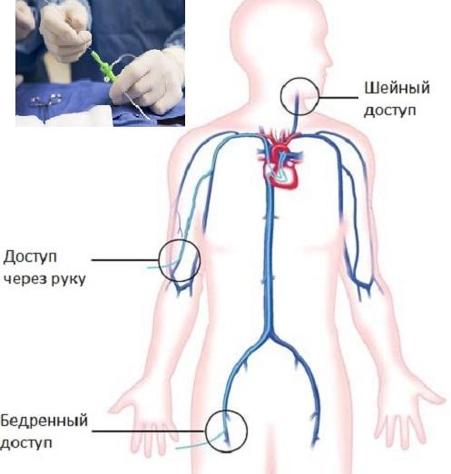 Эндоваскулярная хирургия