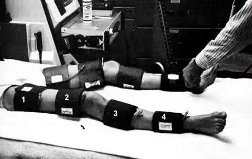 Измерение артериального давления на ноге
